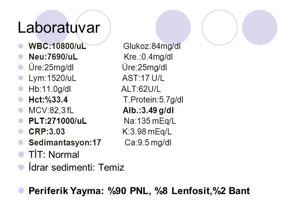 Laboratuvar TİT: Normal İdrar sedimenti: Temiz