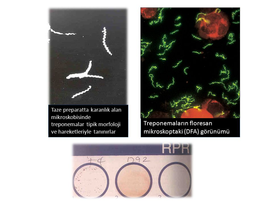 Treponemaların floresan mikroskoptaki (DFA) görünümü
