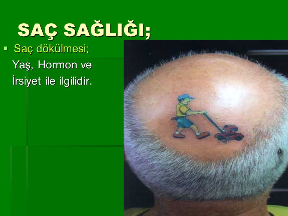 SAÇ SAĞLIĞI; Saç dökülmesi; Yaş, Hormon ve İrsiyet ile ilgilidir.