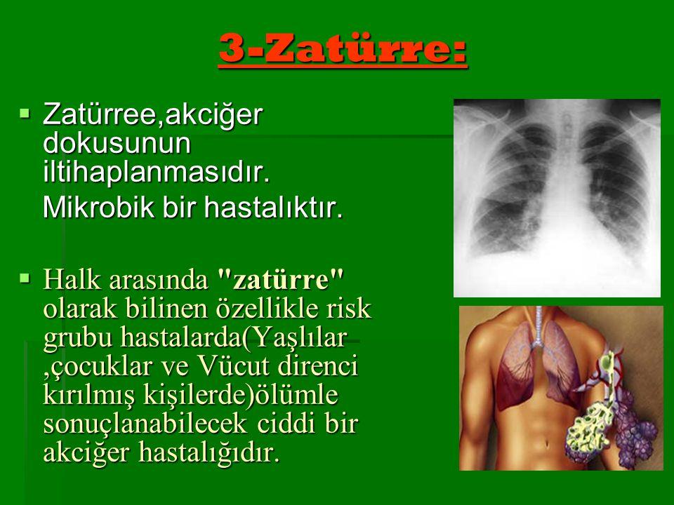 3-Zatürre: Zatürree,akciğer dokusunun iltihaplanmasıdır.