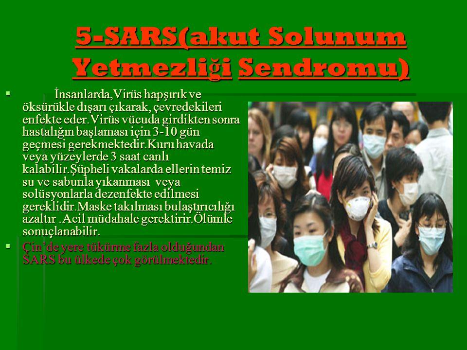 5-SARS(akut Solunum Yetmezliği Sendromu)