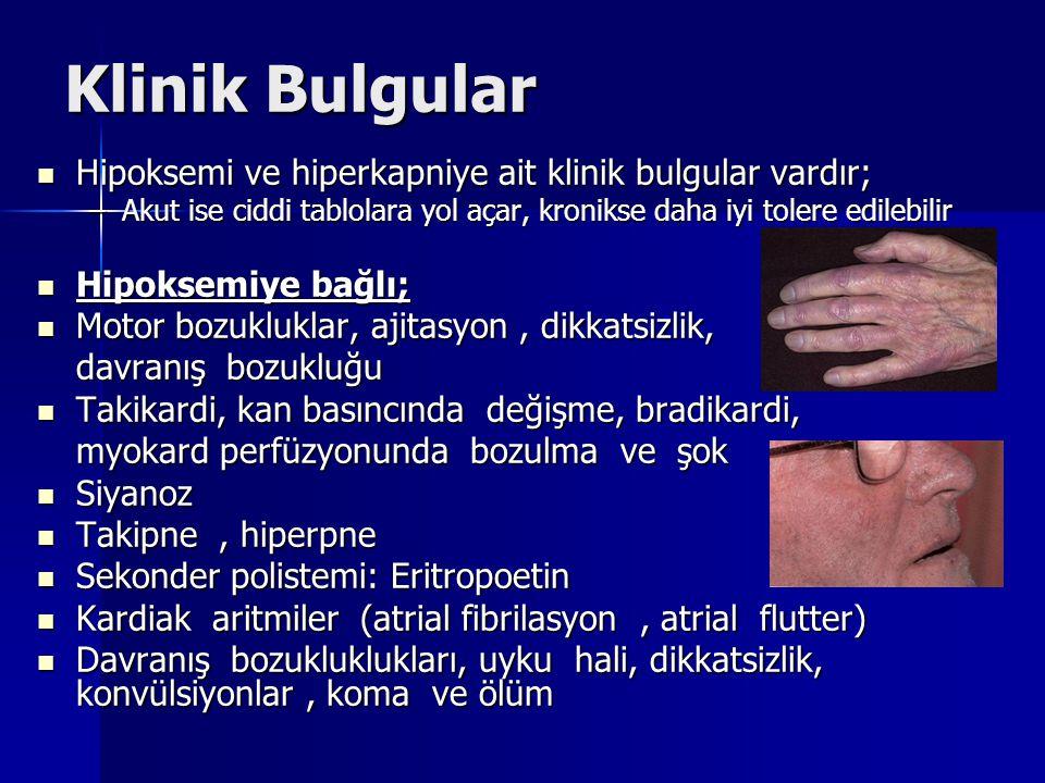 Klinik Bulgular Hipoksemi ve hiperkapniye ait klinik bulgular vardır;