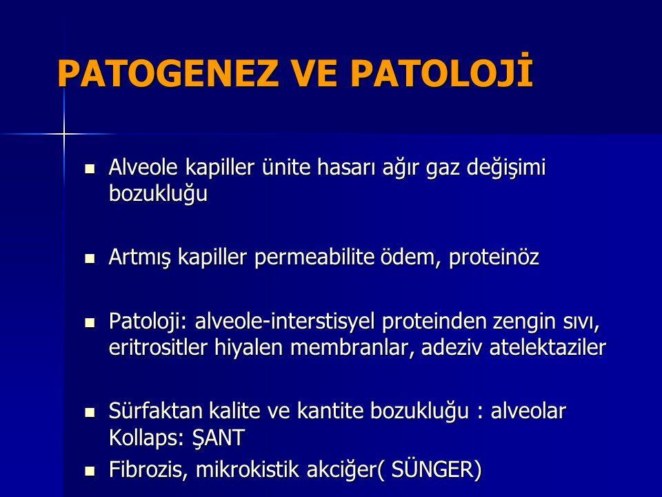 PATOGENEZ VE PATOLOJİ Alveole kapiller ünite hasarı ağır gaz değişimi bozukluğu. Artmış kapiller permeabilite ödem, proteinöz.