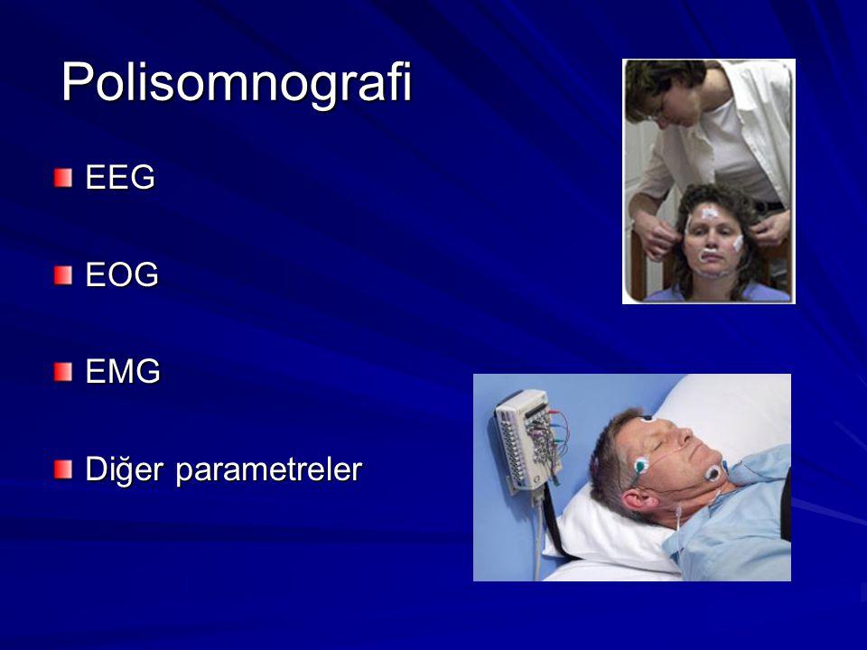 Polisomnografi EEG EOG EMG Diğer parametreler