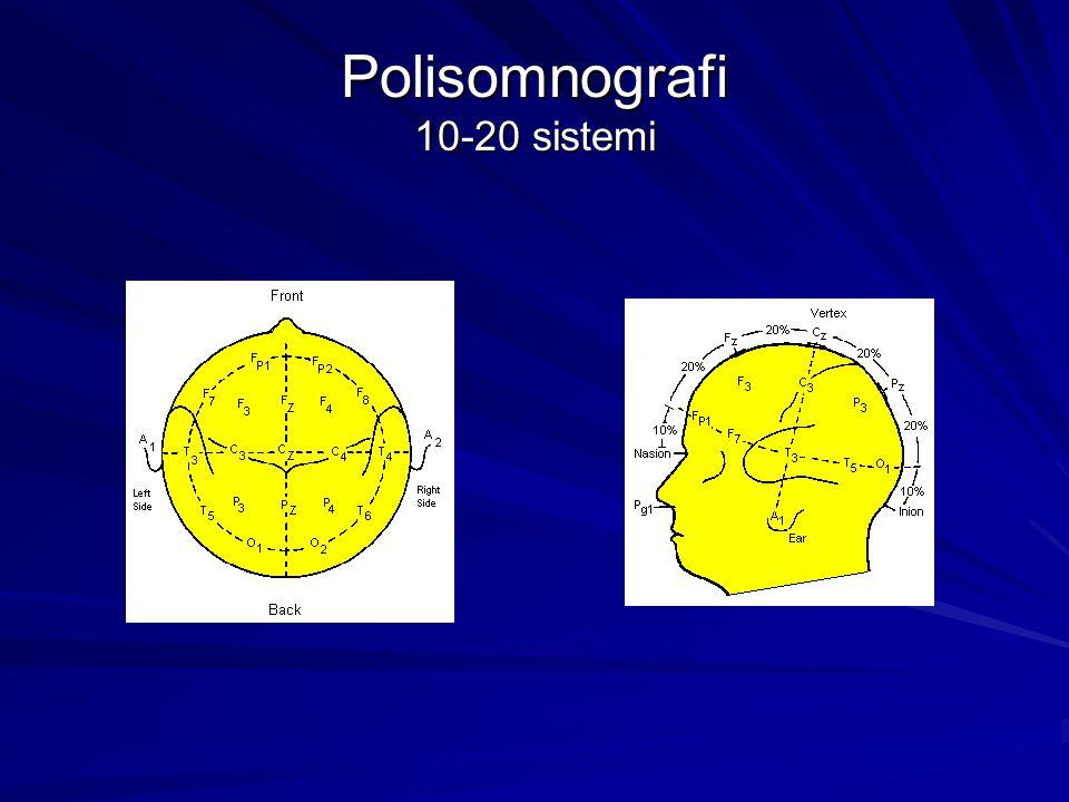 Polisomnografi 10-20 sistemi