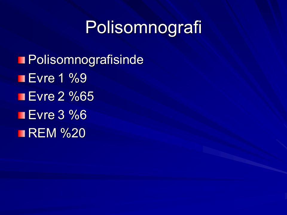 Polisomnografi Polisomnografisinde Evre 1 %9 Evre 2 %65 Evre 3 %6