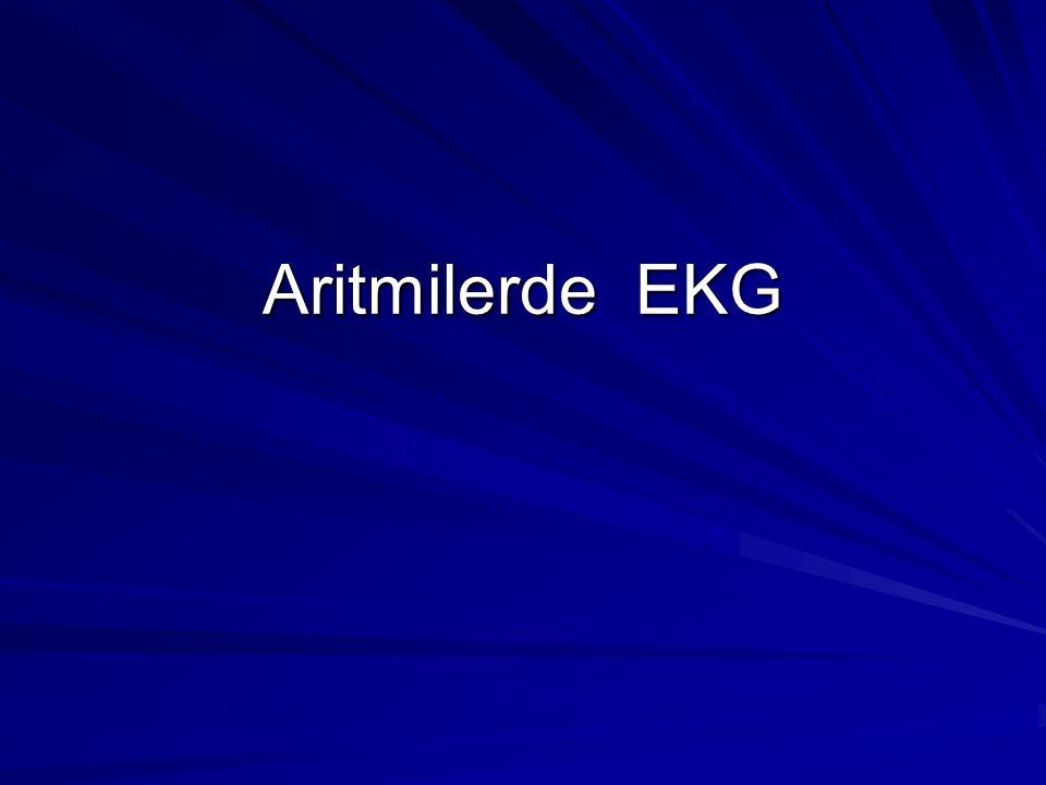 Aritmilerde EKG
