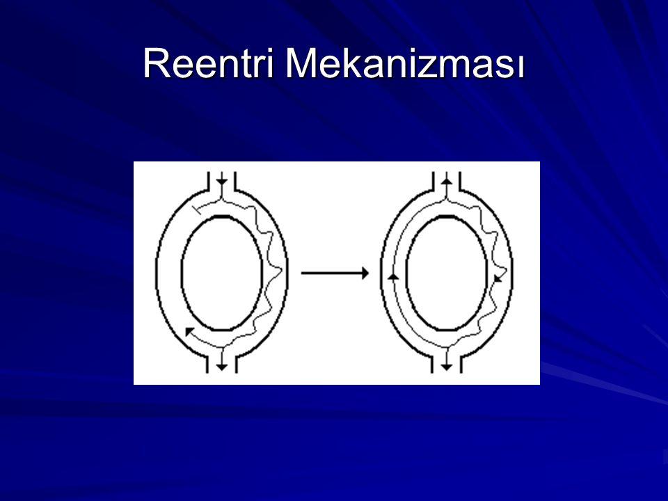 Reentri Mekanizması