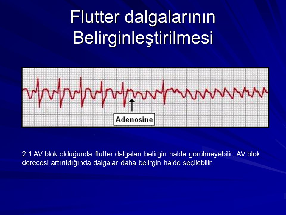 Flutter dalgalarının Belirginleştirilmesi