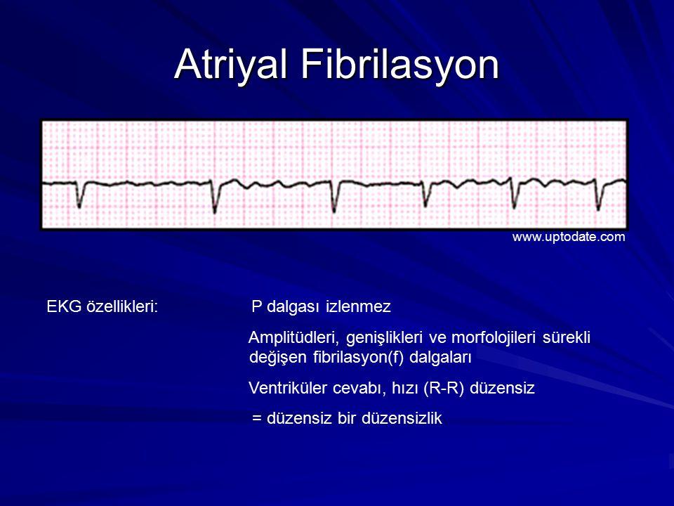 Atriyal Fibrilasyon EKG özellikleri: P dalgası izlenmez