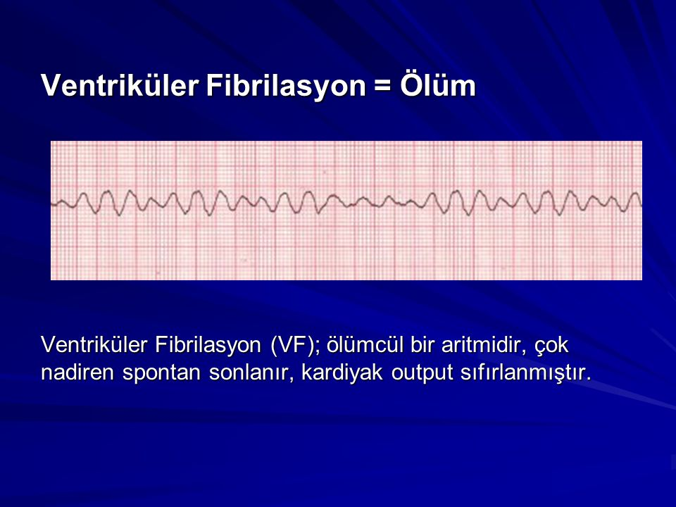 Ventriküler Fibrilasyon = Ölüm