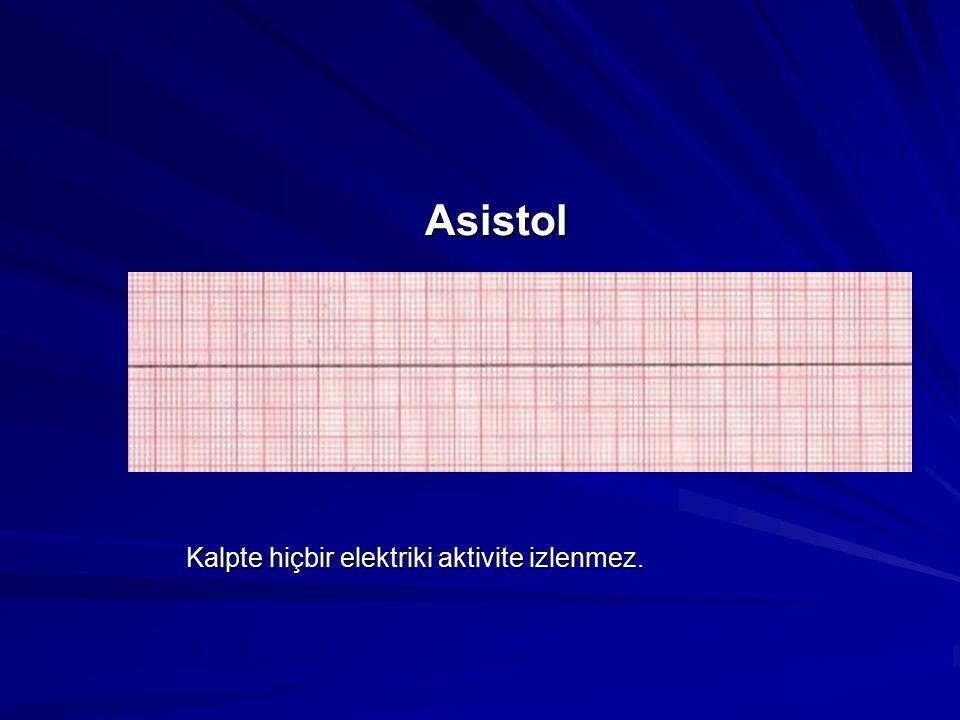 Asistol Kalpte hiçbir elektriki aktivite izlenmez.