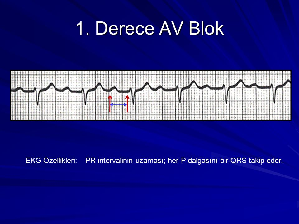1. Derece AV Blok EKG Özellikleri: PR intervalinin uzaması; her P dalgasını bir QRS takip eder.