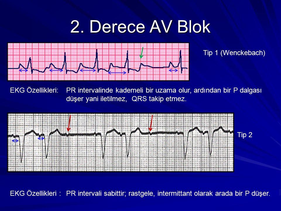 2. Derece AV Blok Tip 1 (Wenckebach)