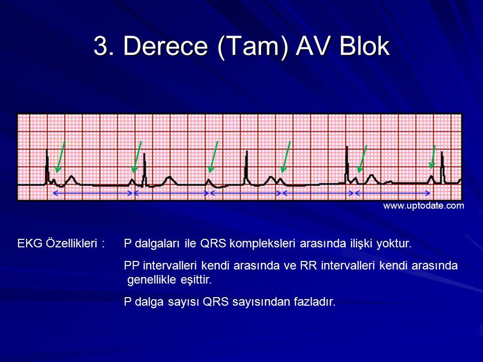 3. Derece (Tam) AV Blok www.uptodate.com. EKG Özellikleri : P dalgaları ile QRS kompleksleri arasında ilişki yoktur.
