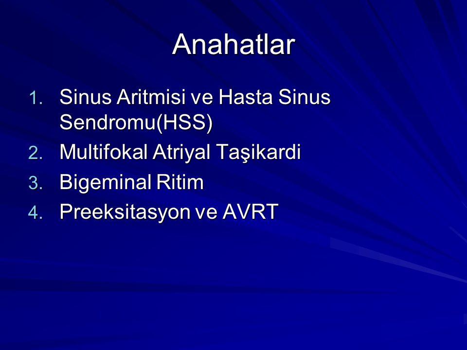 Anahatlar Sinus Aritmisi ve Hasta Sinus Sendromu(HSS)
