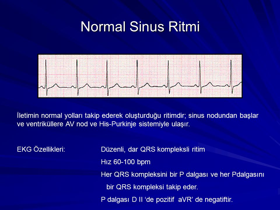 Normal Sinus Ritmi