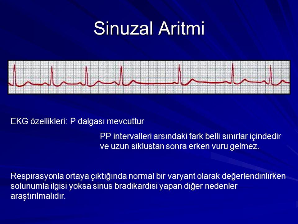 Sinuzal Aritmi EKG özellikleri: P dalgası mevcuttur
