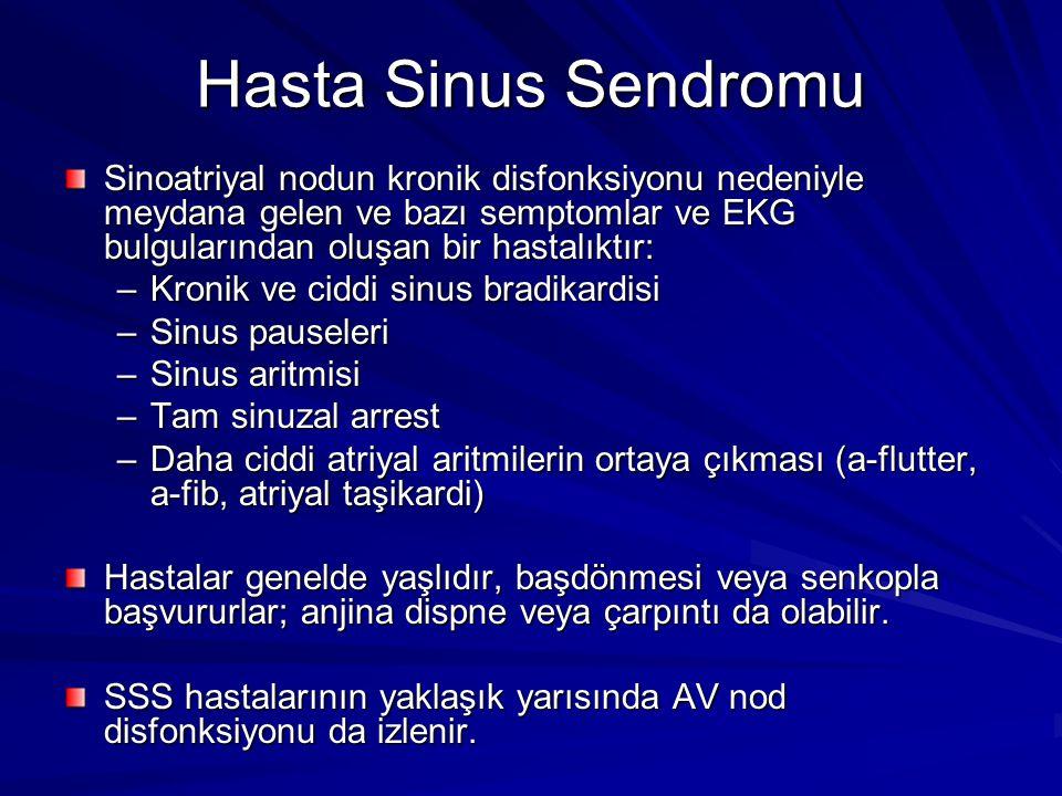 Hasta Sinus Sendromu Sinoatriyal nodun kronik disfonksiyonu nedeniyle meydana gelen ve bazı semptomlar ve EKG bulgularından oluşan bir hastalıktır: