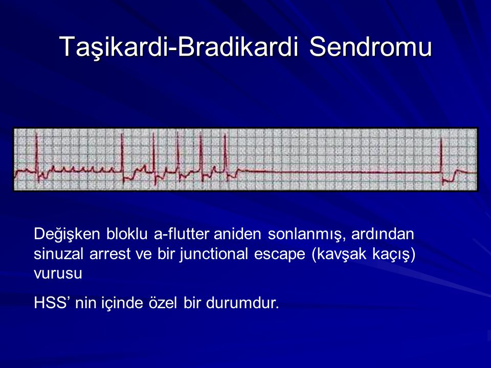 Taşikardi-Bradikardi Sendromu