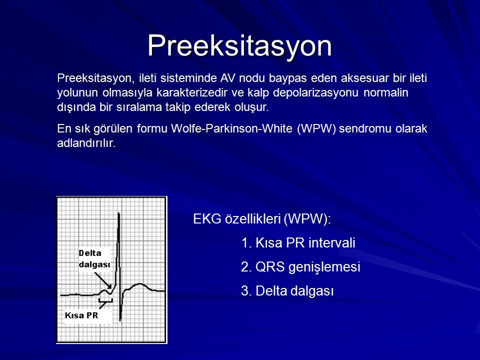 Preeksitasyon EKG özellikleri (WPW): 1. Kısa PR intervali