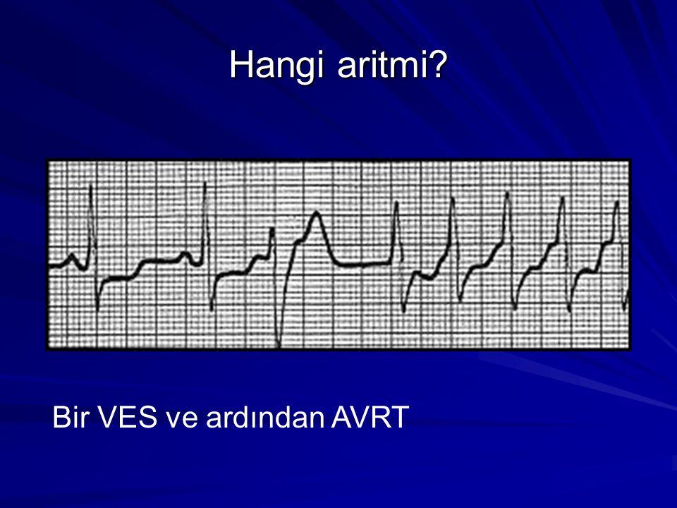 Hangi aritmi Bir VES ve ardından AVRT