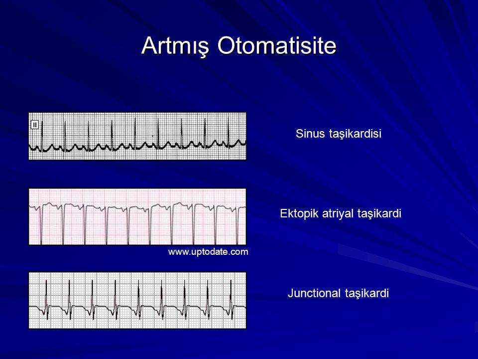 Artmış Otomatisite Sinus taşikardisi Ektopik atriyal taşikardi