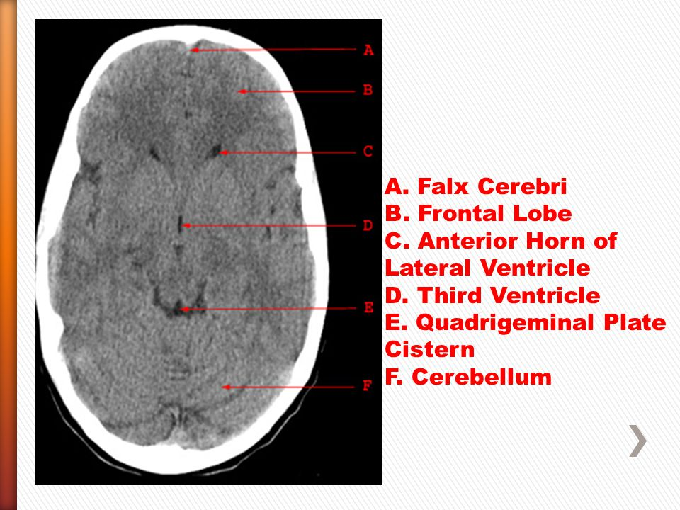 A. Falx Cerebri B. Frontal Lobe. C. Anterior Horn of Lateral Ventricle. D. Third Ventricle. E. Quadrigeminal Plate Cistern.