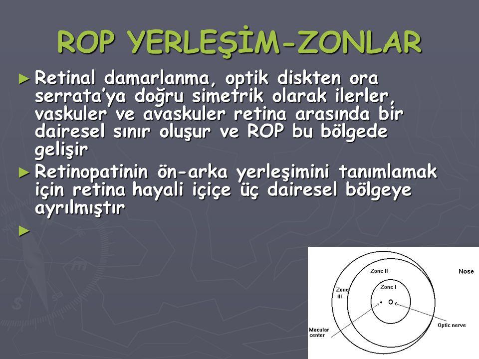 ROP YERLEŞİM-ZONLAR