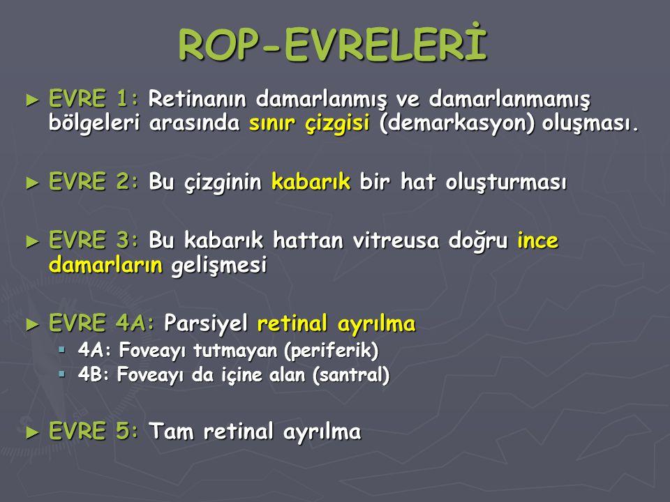 ROP-EVRELERİ EVRE 1: Retinanın damarlanmış ve damarlanmamış bölgeleri arasında sınır çizgisi (demarkasyon) oluşması.