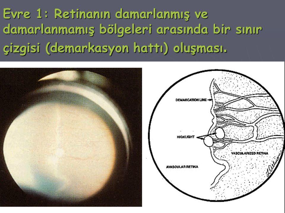Evre 1: Retinanın damarlanmış ve damarlanmamış bölgeleri arasında bir sınır çizgisi (demarkasyon hattı) oluşması.