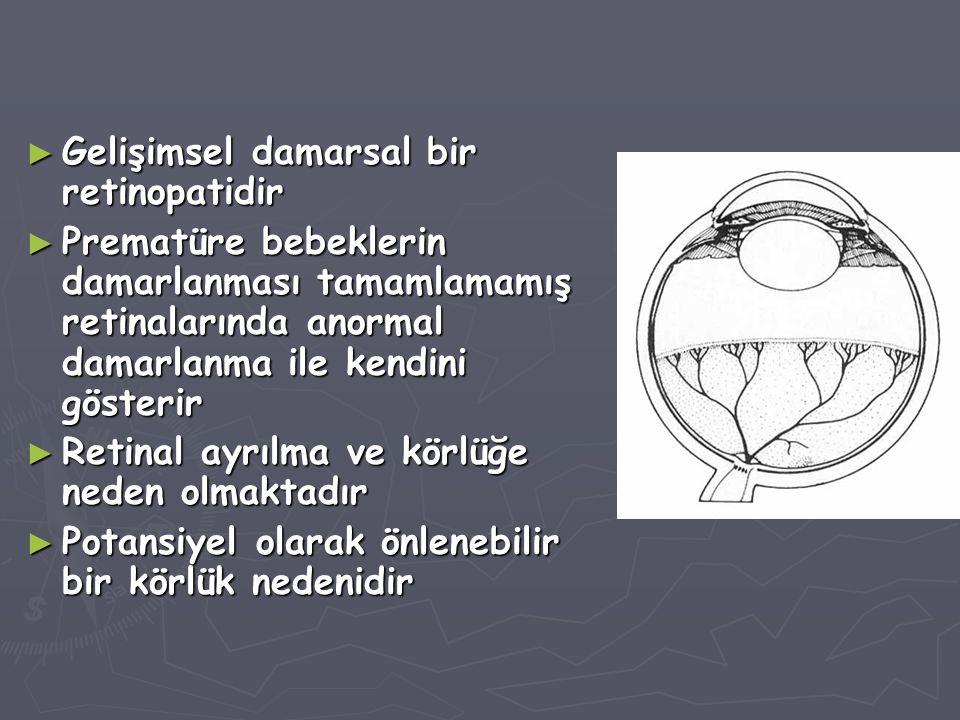 Gelişimsel damarsal bir retinopatidir
