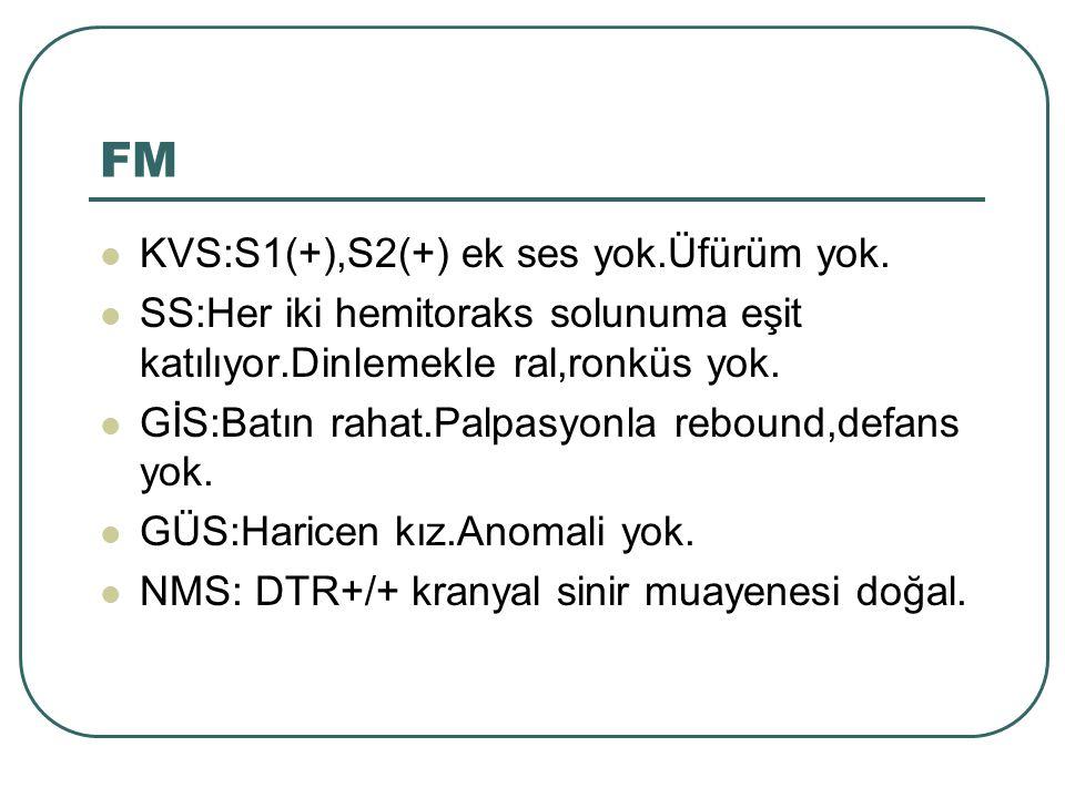 FM KVS:S1(+),S2(+) ek ses yok.Üfürüm yok.