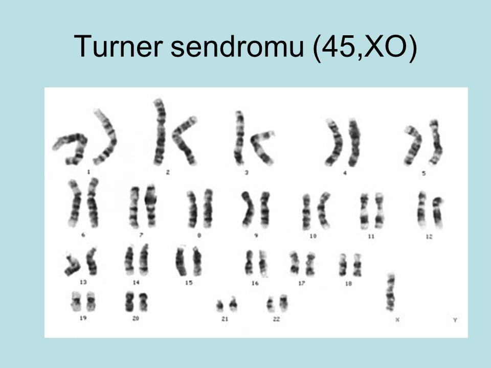 Turner sendromu (45,XO)