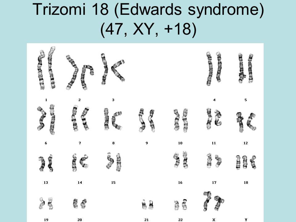 Trizomi 18 (Edwards syndrome) (47, XY, +18)