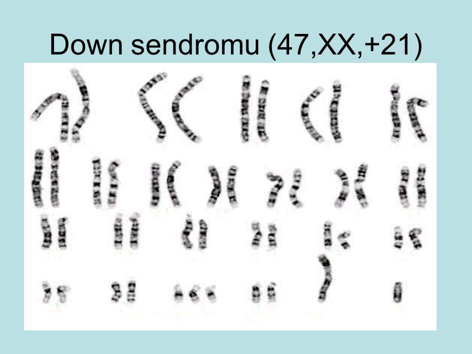 Down sendromu (47,XX,+21)