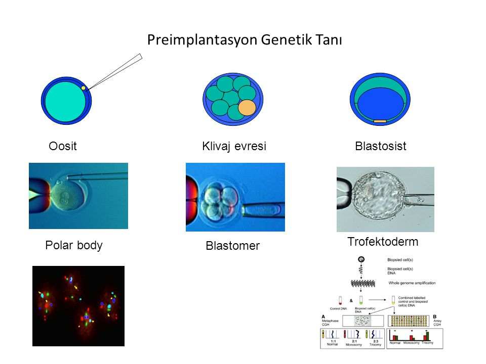 Preimplantasyon Genetik Tanı
