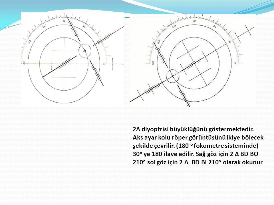 2Δ diyoptrisi büyüklüğünü göstermektedir