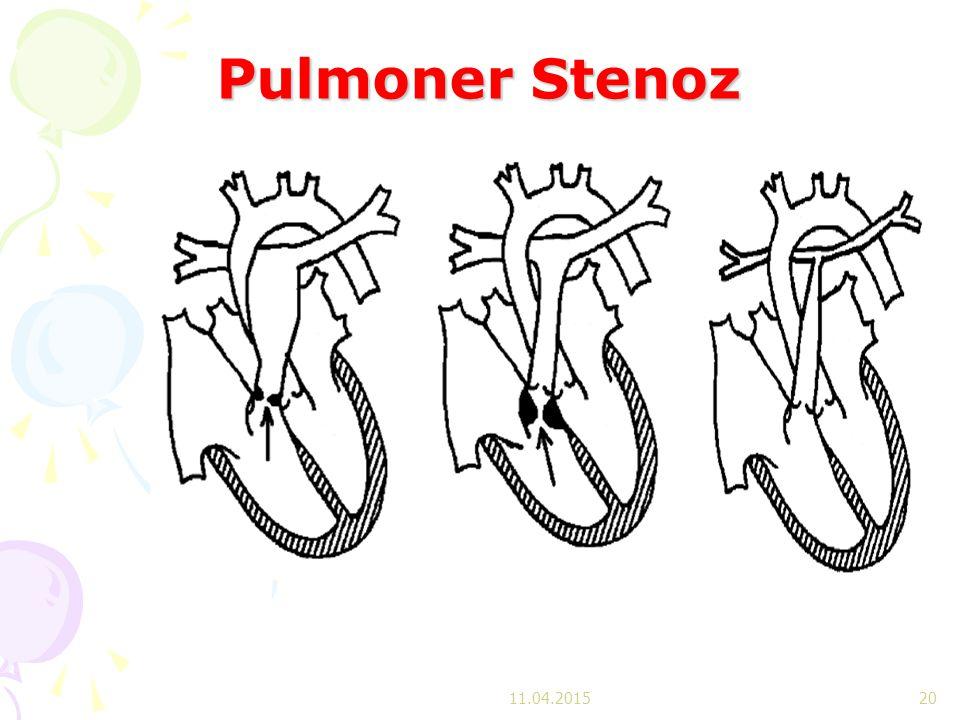 Pulmoner Stenoz 11.04.2017