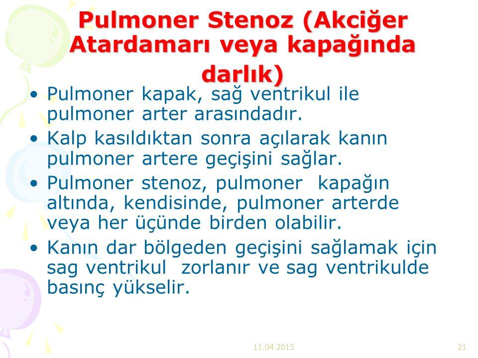 Pulmoner Stenoz (Akciğer Atardamarı veya kapağında darlık)