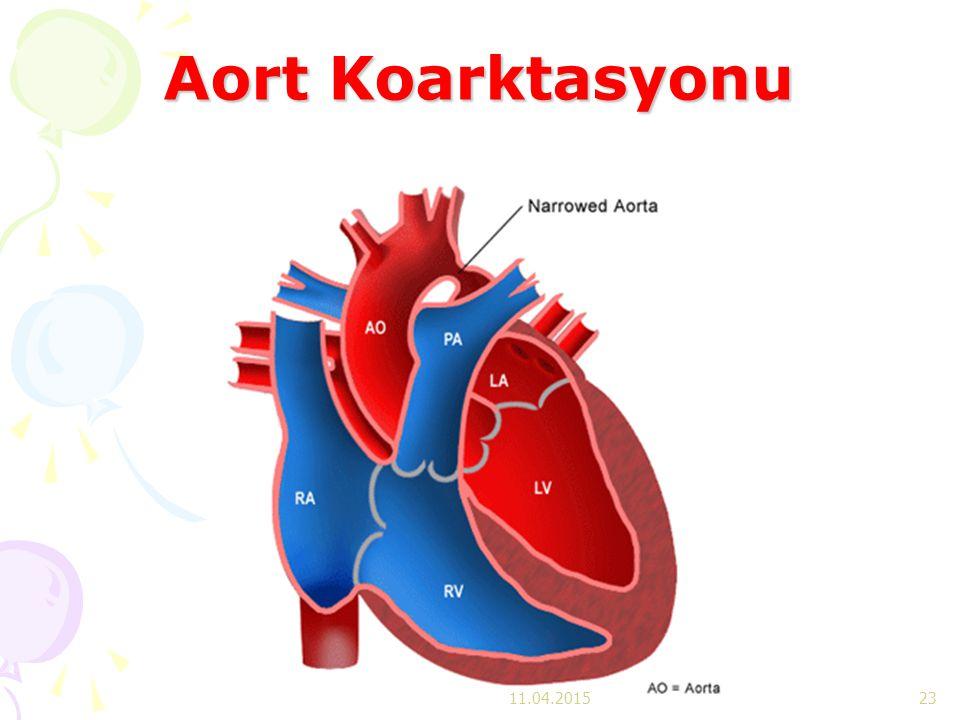 Aort Koarktasyonu 11.04.2017