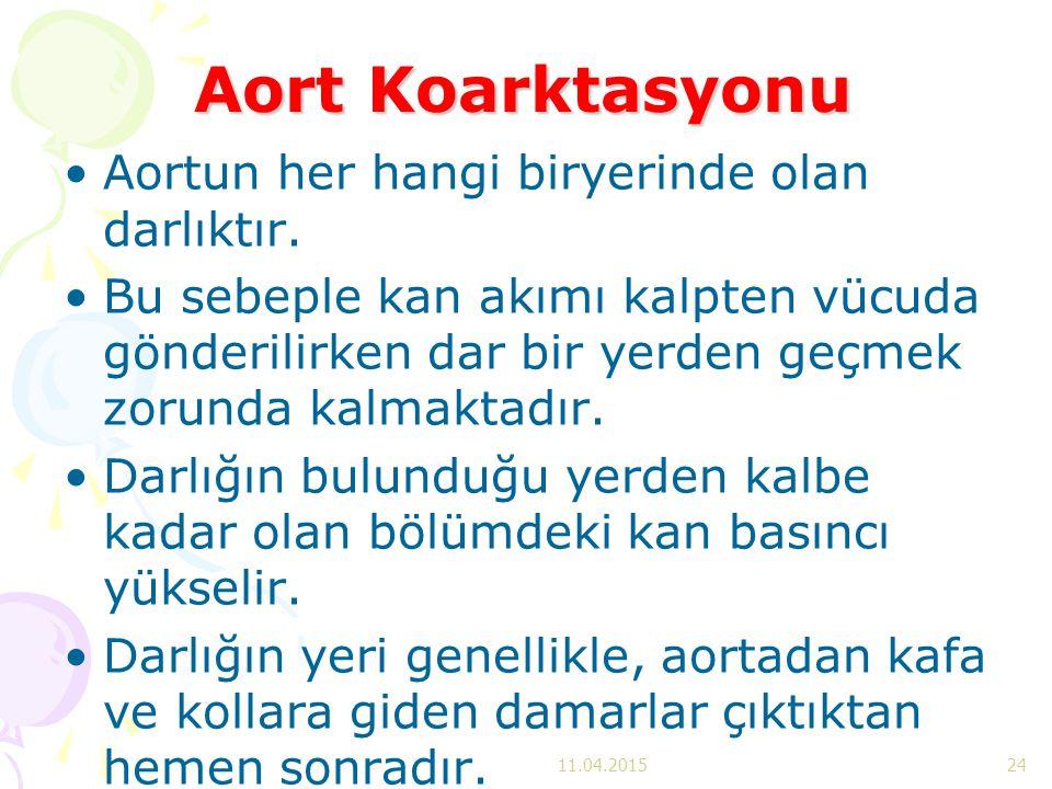 Aort Koarktasyonu Aortun her hangi biryerinde olan darlıktır.