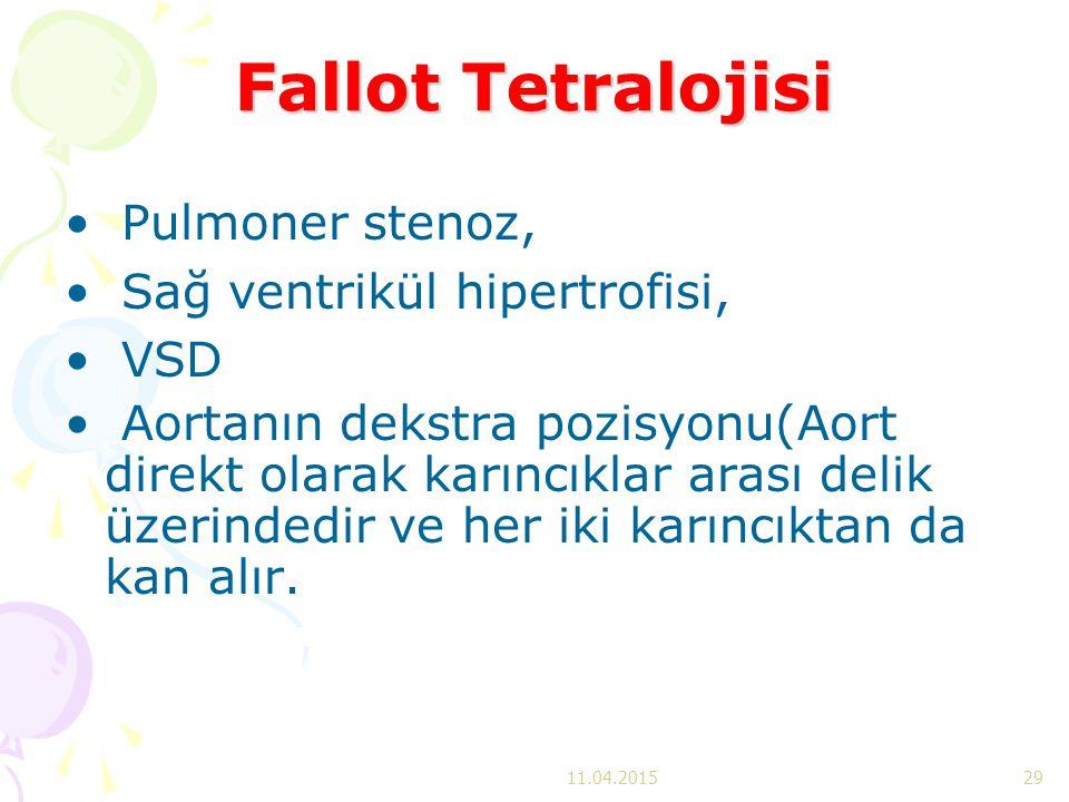 Fallot Tetralojisi Pulmoner stenoz, Sağ ventrikül hipertrofisi, VSD