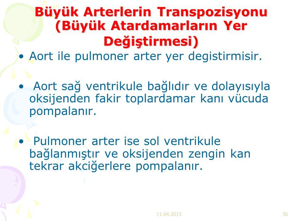 Büyük Arterlerin Transpozisyonu (Büyük Atardamarların Yer Değiştirmesi)