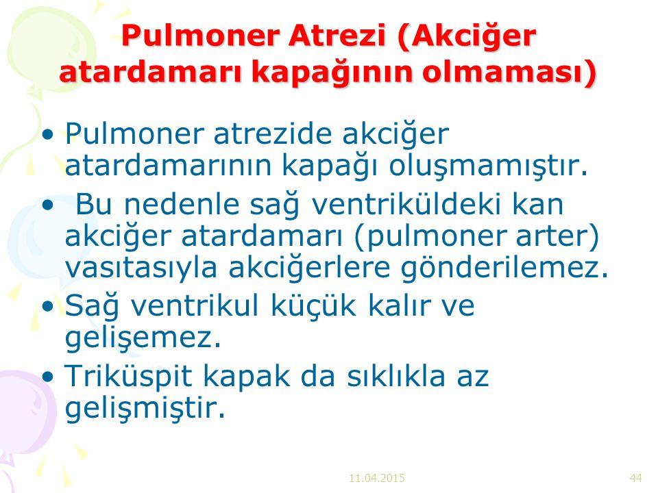 Pulmoner Atrezi (Akciğer atardamarı kapağının olmaması)