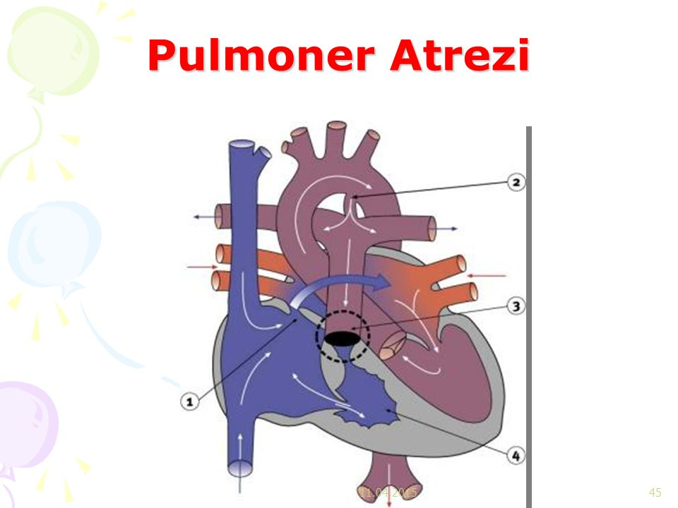 Pulmoner Atrezi 11.04.2017