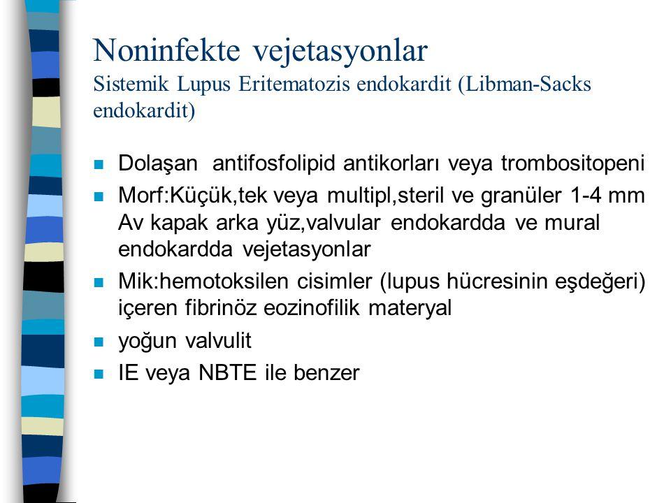 Noninfekte vejetasyonlar Sistemik Lupus Eritematozis endokardit (Libman-Sacks endokardit)