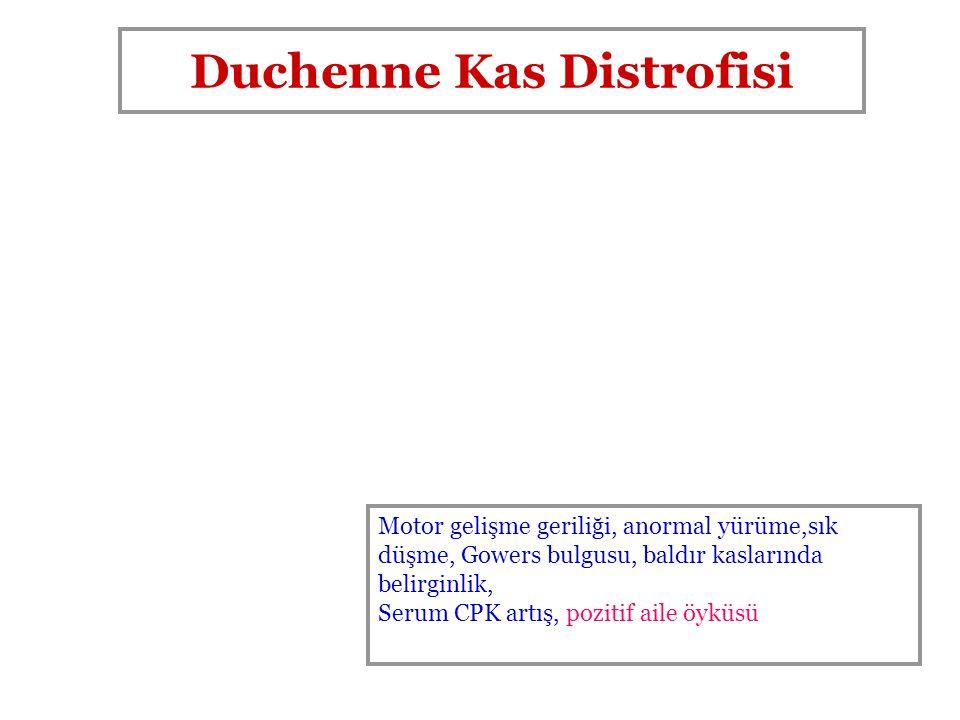 Duchenne Kas Distrofisi
