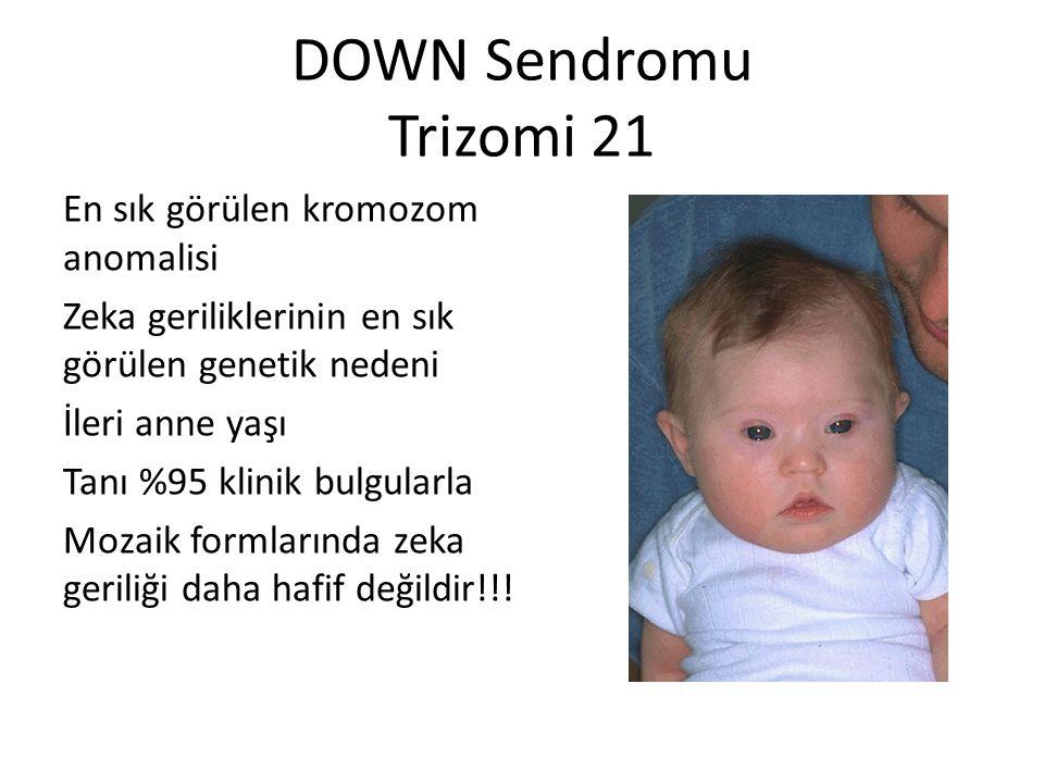 DOWN Sendromu Trizomi 21