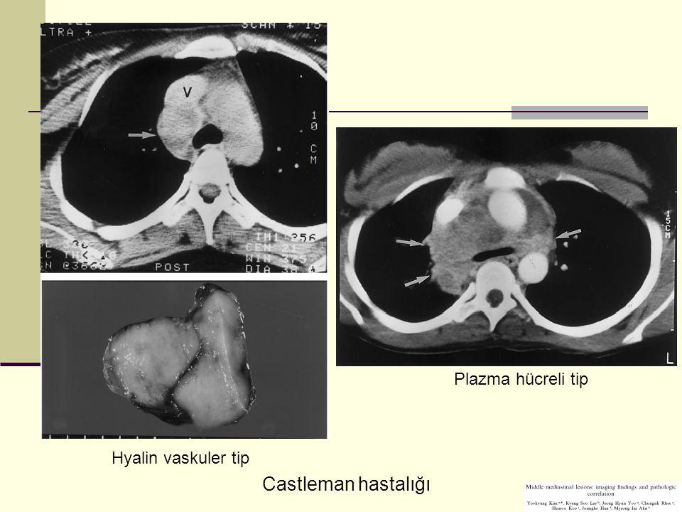 Plazma hücreli tip Hyalin vaskuler tip Castleman hastalığı
